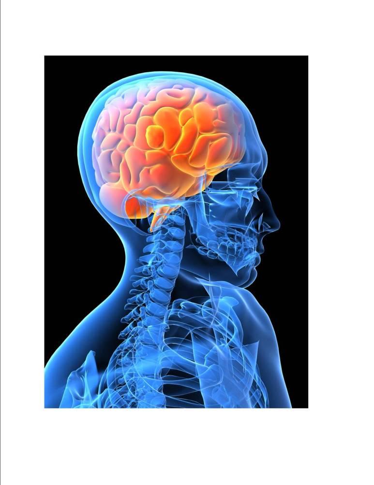 It's not brain surgery...